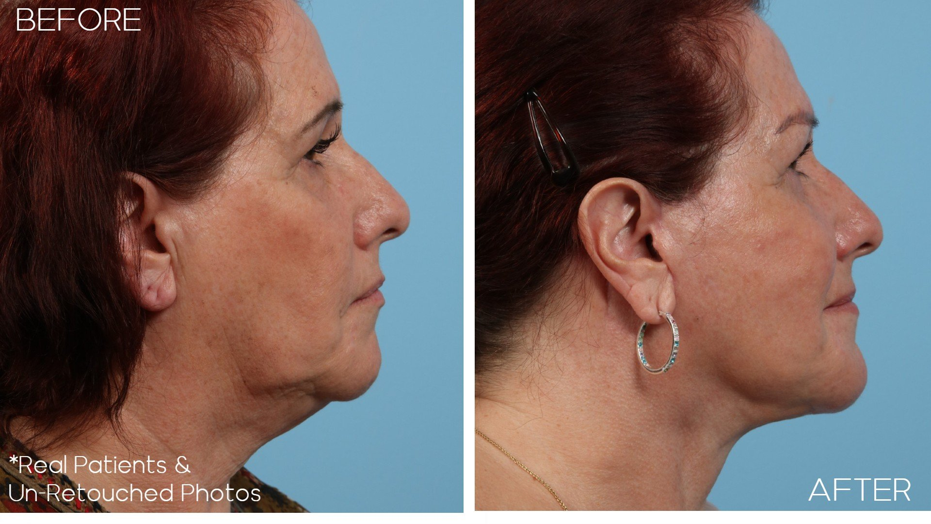 Case-2297-Facelift-Side-Before-and-After