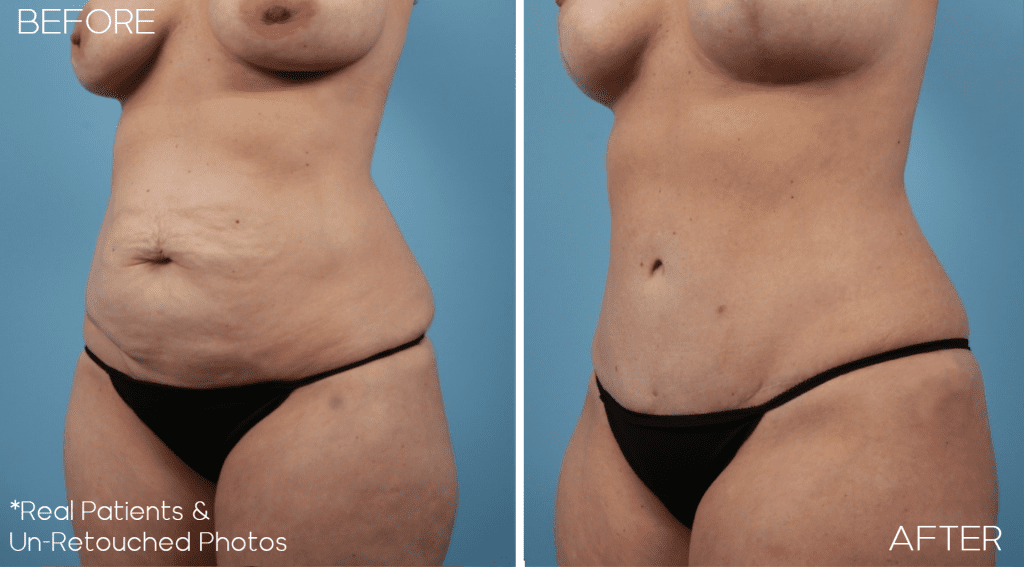 Case-2318-Mommy-Makeover-Oblique-Before-and-After