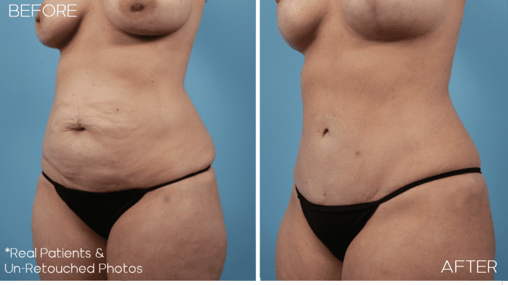 Age 39 Female Mommy Makeover Liposuction/Tummy Tuck Case 2318 Before/After