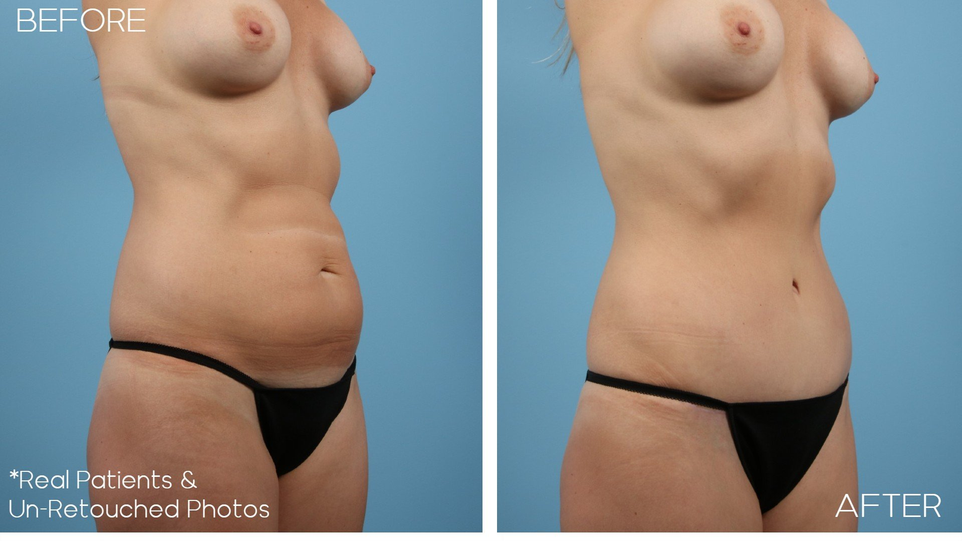 Case-2408-Oblique-Before-and-After