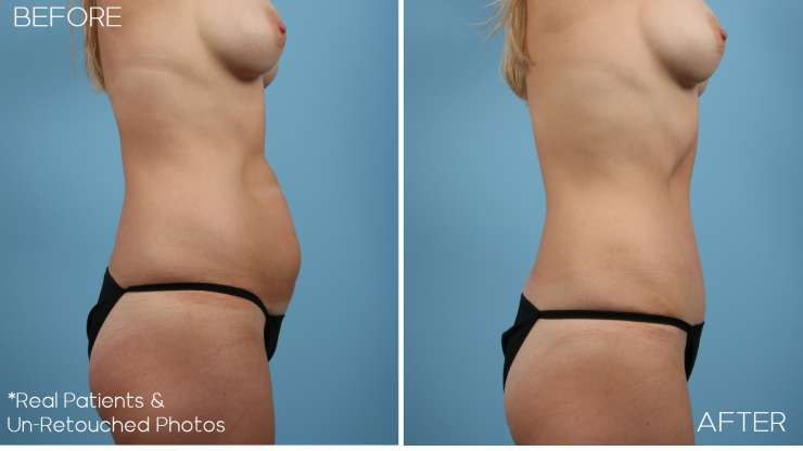 Age 37 Female Abdominoplasty Case 2408 Before/After