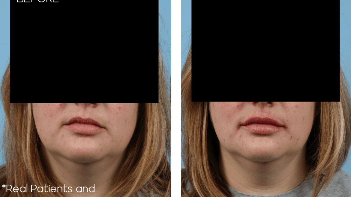 Age 40 Female Injectable Case 2473 Before/After