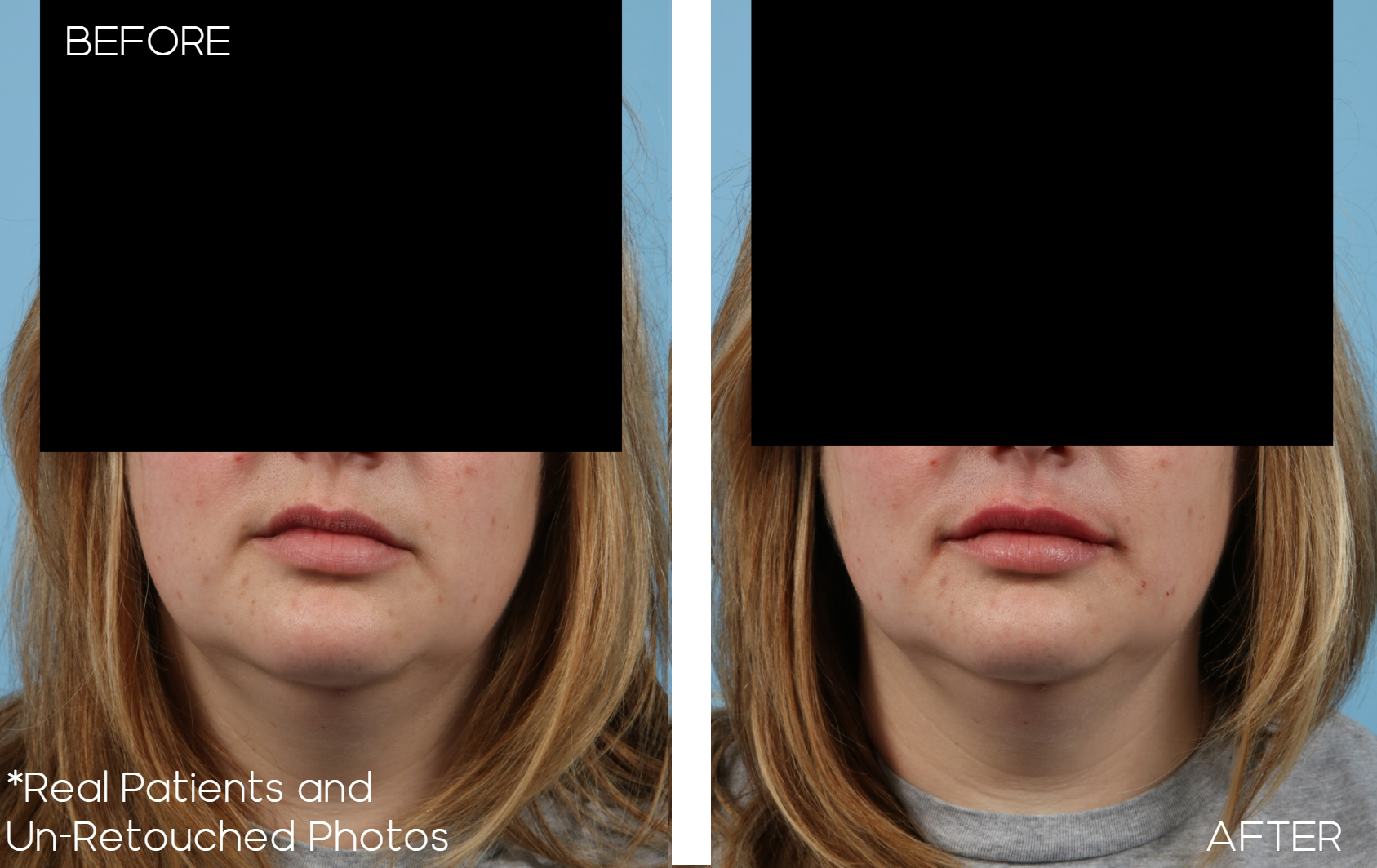 Case-2473-Injectable-Before-and-After