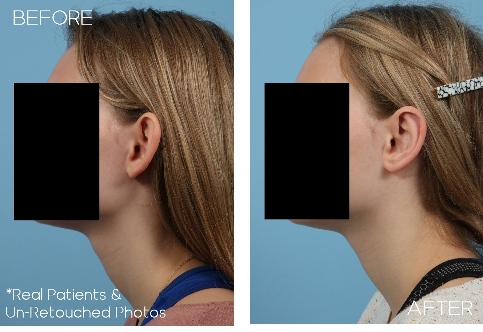 Case-2582-Otoplasty-Side-Before-and-After