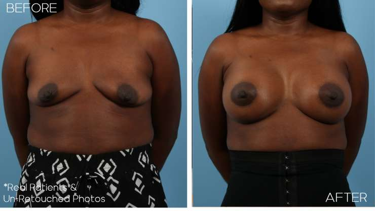 Age 40 Female Breast Augmentation Case 2943 Before/After
