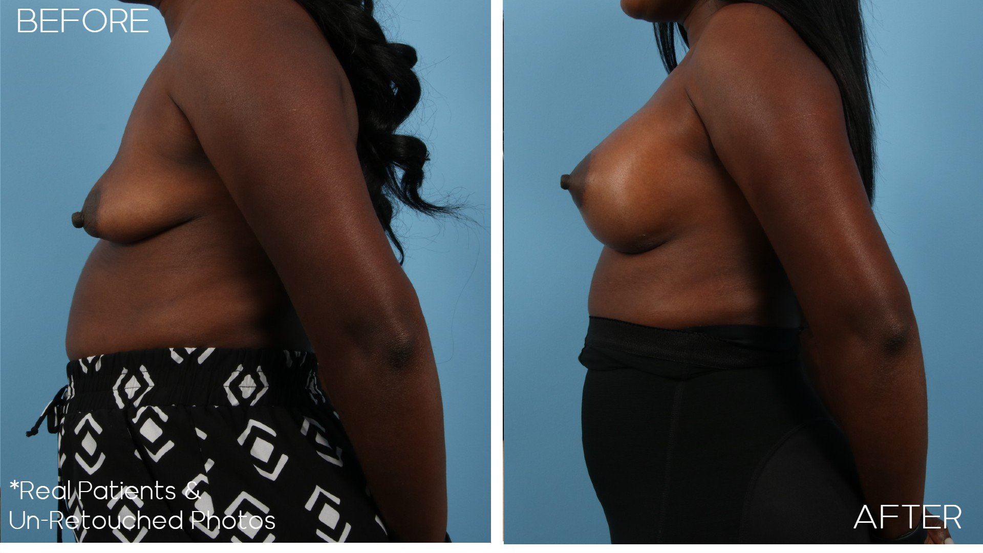 Case-2943-Breast-Augmentation-Side-Before-and-After
