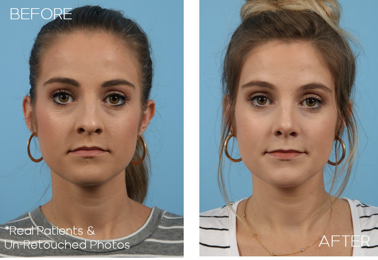 Case-306-Rhinoplasty-Front-Before-and-After