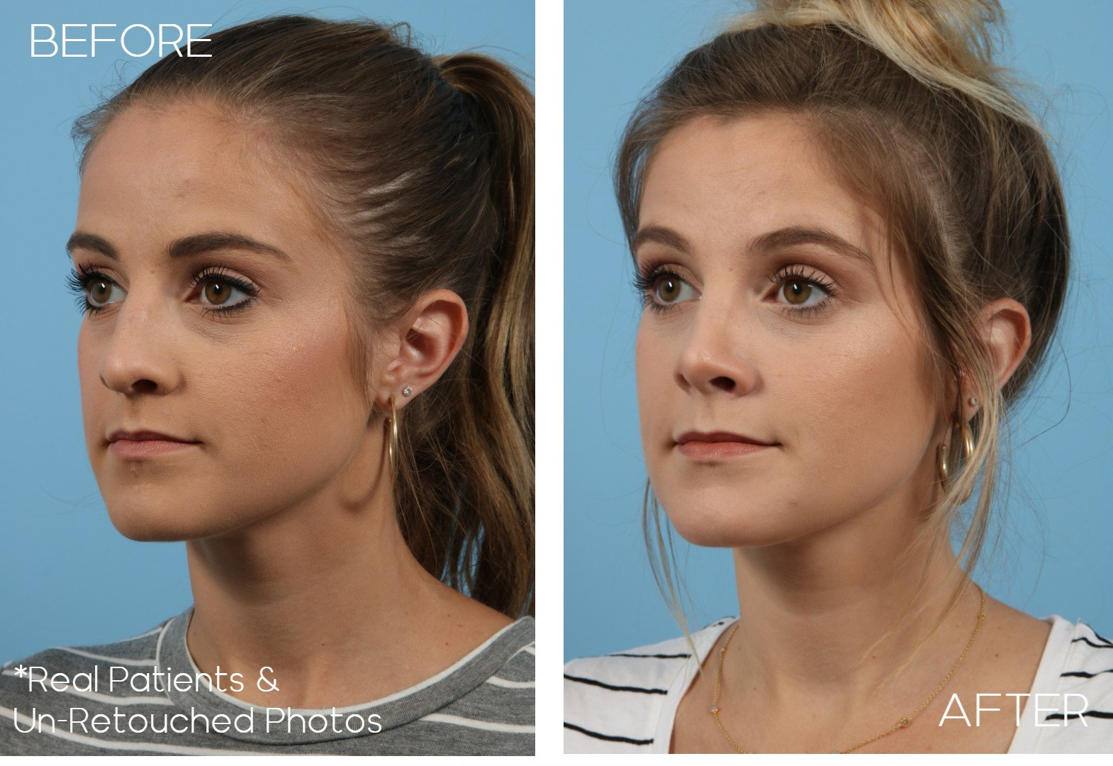 Case-306-Rhinoplasty-Oblique-Before-and-After