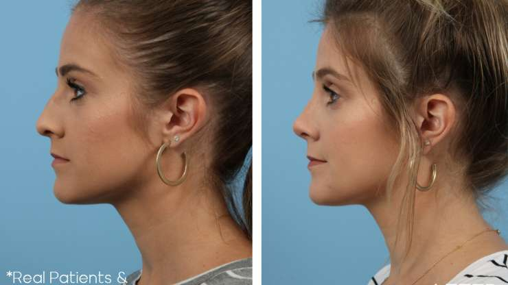 Age 27 Female Rhinoplasty Case 306 Before/After