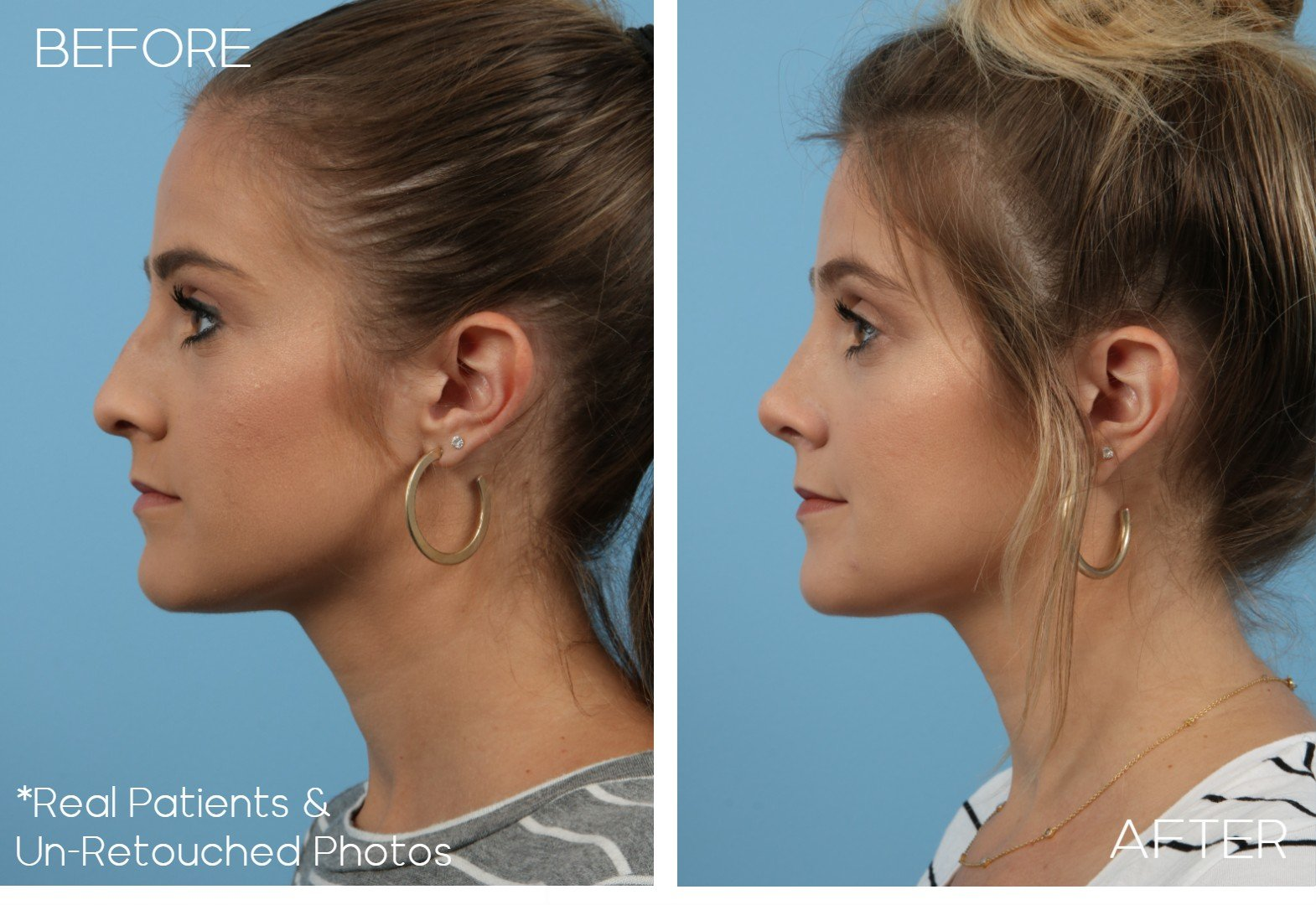Case-306-Rhinoplasty-Side-Before-and-After