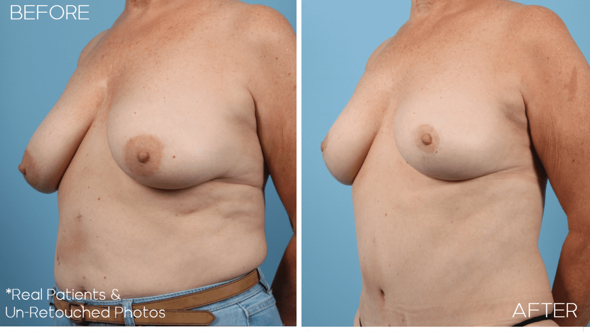 Age 59 Female Breast Lift Case 358 Before/After