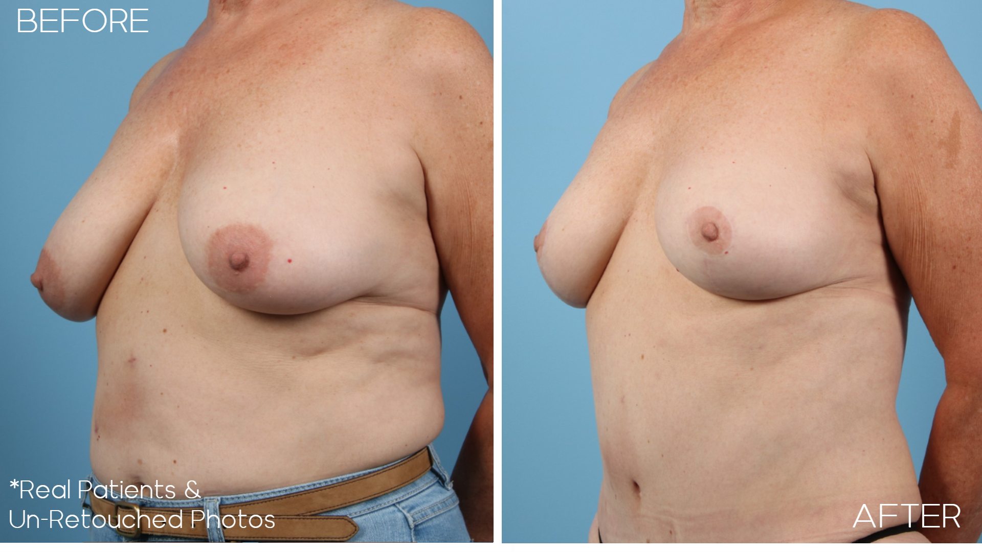 Case-358-Breast-Lift-Before-and-After