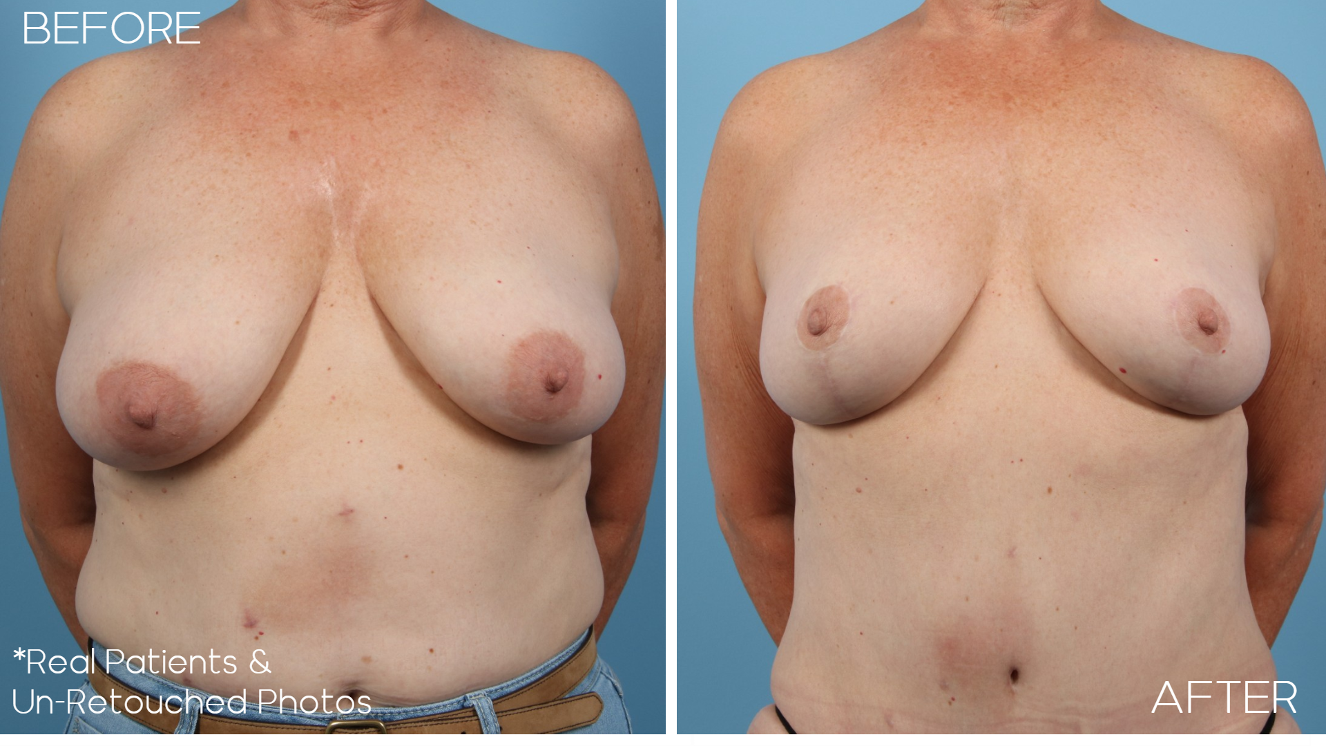Case-358-Breast-Lift-Front-Before-and-After