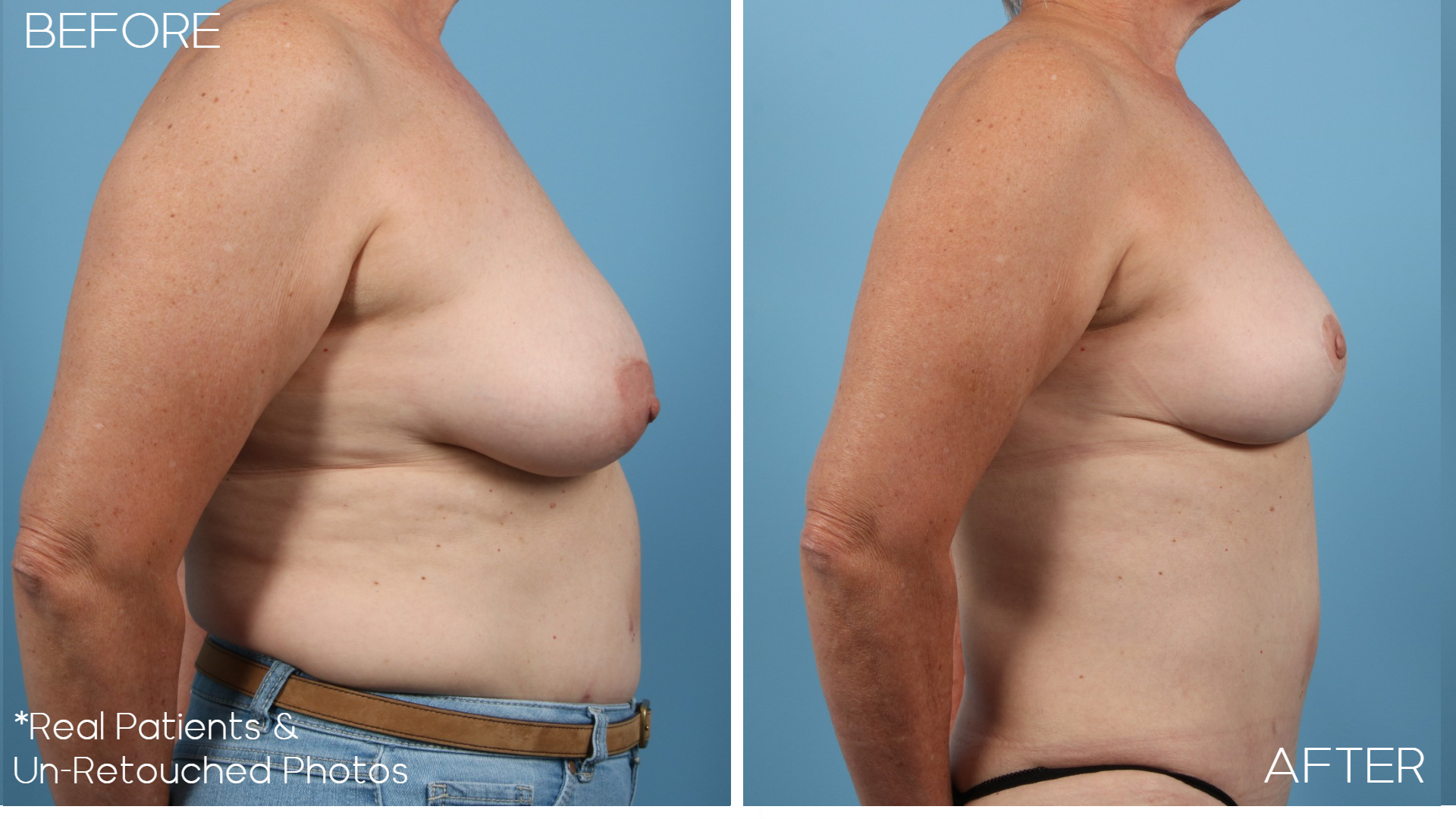 Case-358-Breast-Lift-Side-Before-and-After