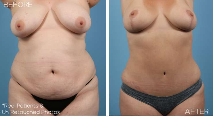Age 36 Female Mommy Makeover, Tummy Tuck, Liposuction Case 414 Before/After