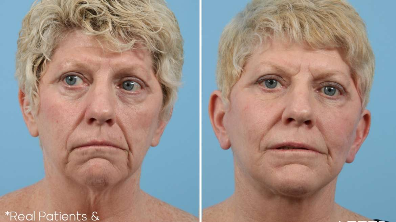 Age 59 Female Upper Eyelid Case 456 Before/After