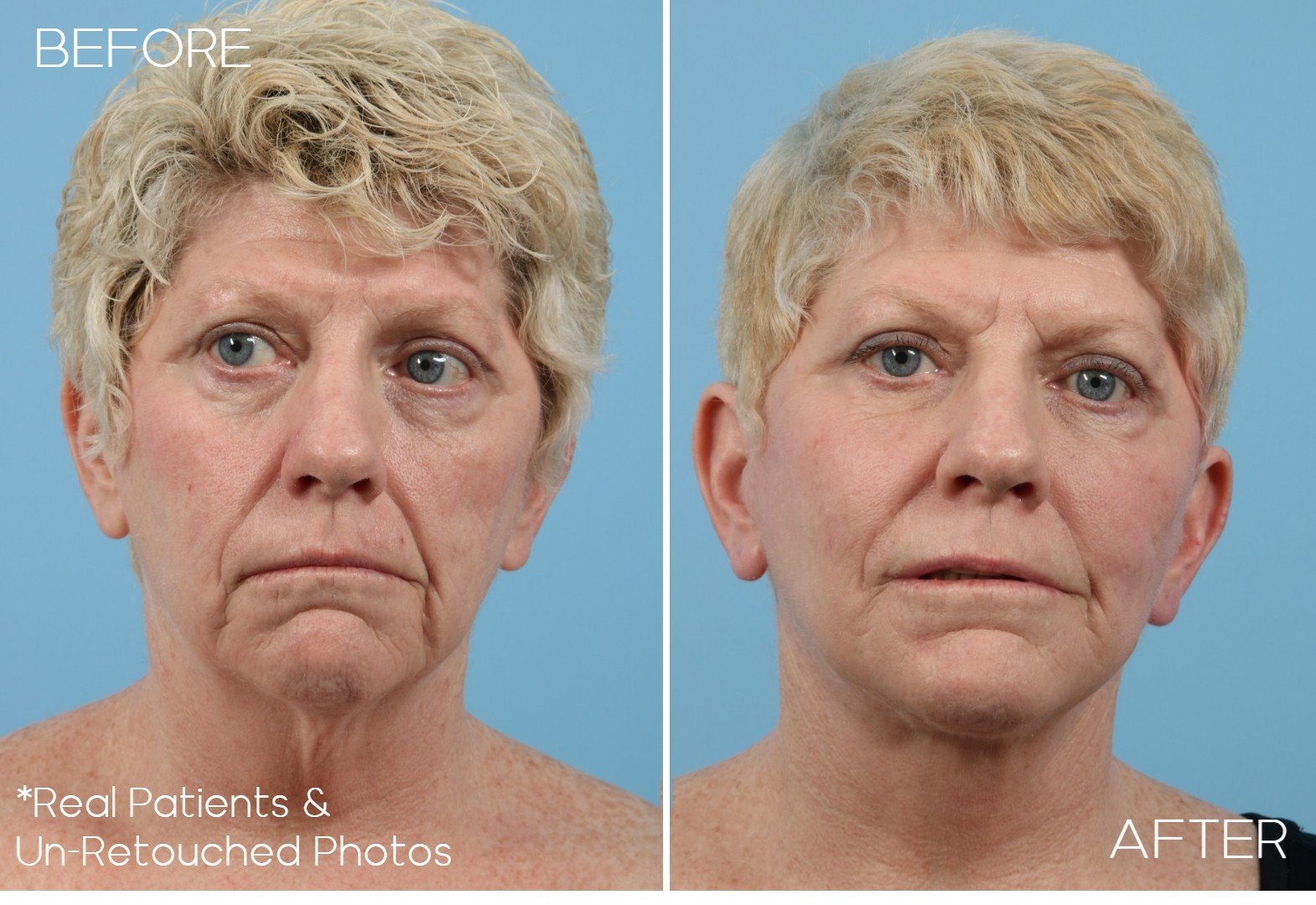 Case-456-Eyelid-Surgery-Before-and-After