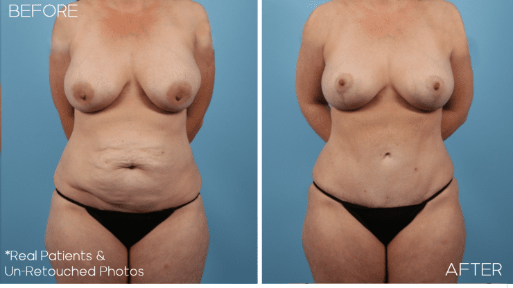 Age 39 Female Mommy Makeover, Tummy Tuck, Liposuction Case 624 Before/After