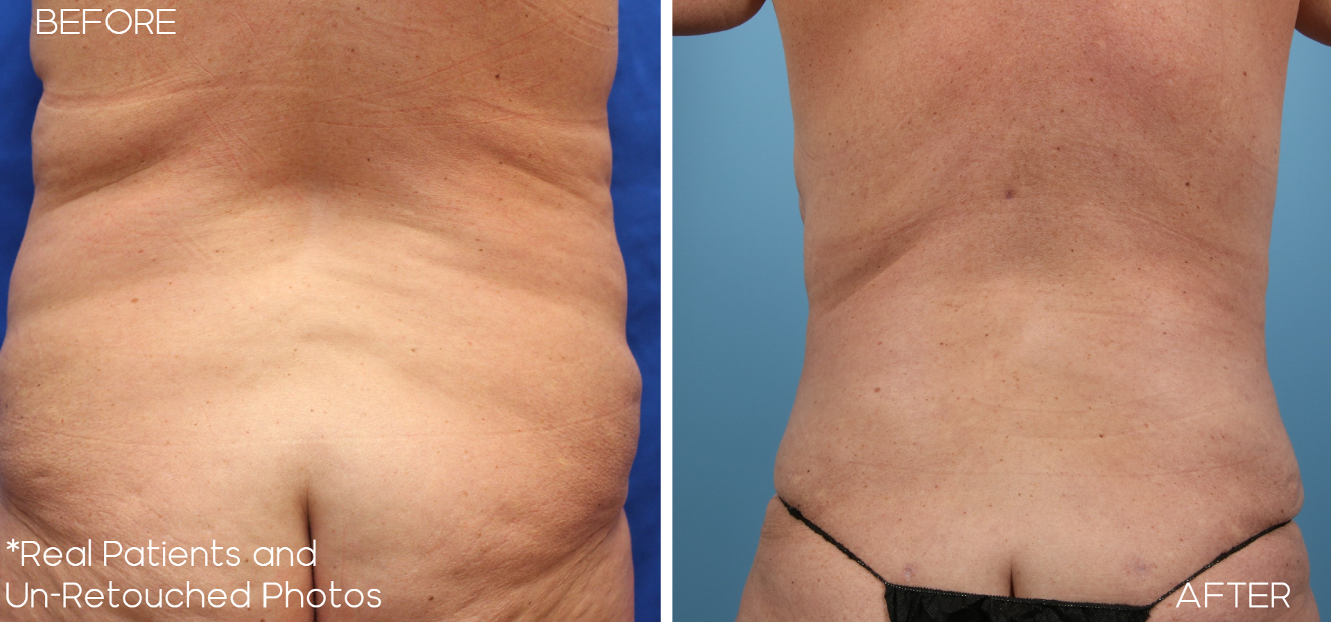 Case-8-Lipo-Before-and-After