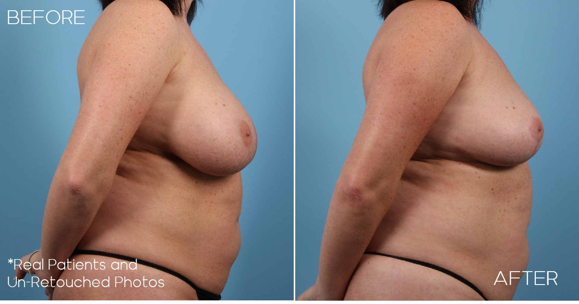 Case-987-Breast-Implant-Removal-Breast-Lift-Side-Before-and-After