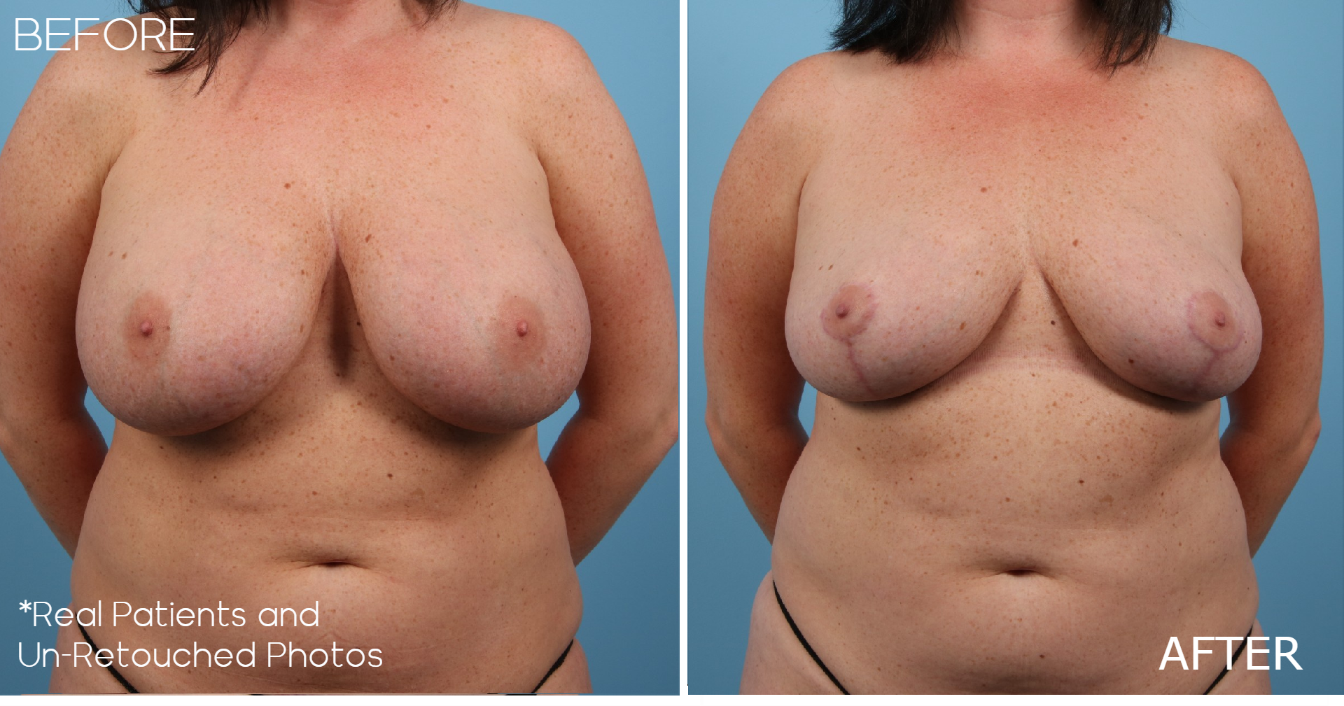 Case-987-Implant-Removal-Breast-Lift-Front-Before-and-After