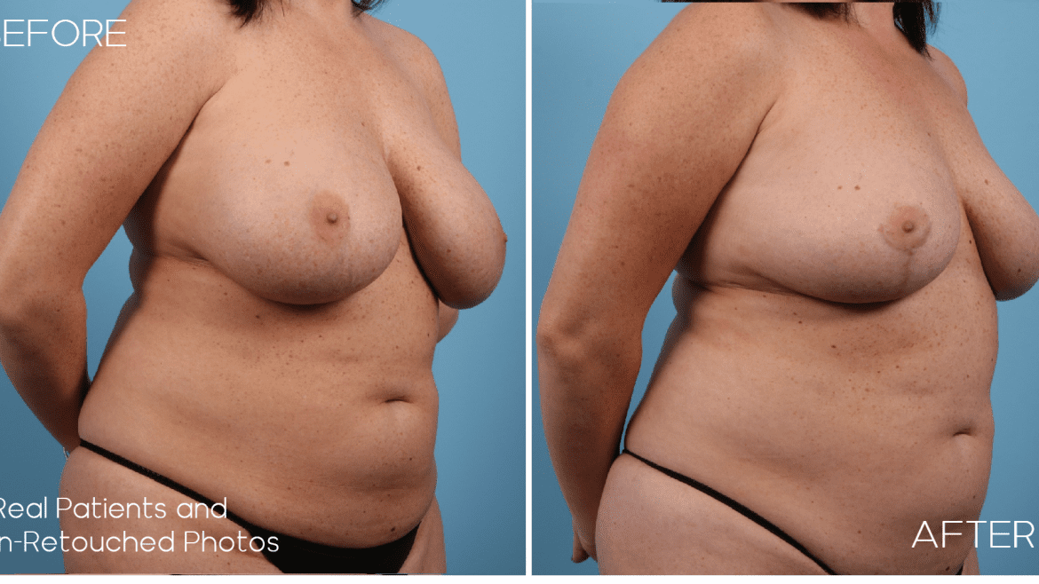 Age 34 Female Breast Implant Removal and Breast Lift Case 987 Before/After