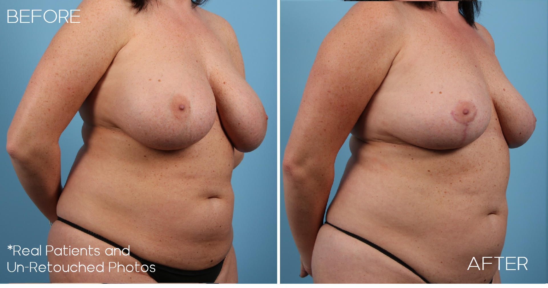 Case-987-Implant-Removal-Breast-Lift-Oblique-Before-and-After