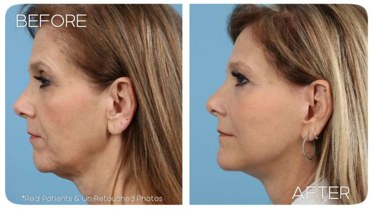 Facelift Case 5 Before/After