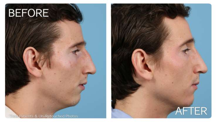 Age 25 Rhinoplasty Case 1 Before/After