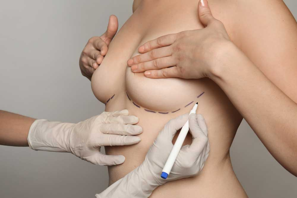 Planning for Breast Reduction Surgery