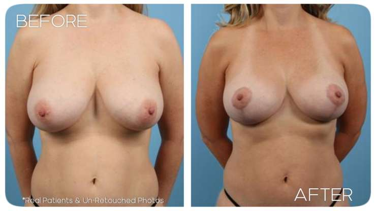 Age 48 Female Breast Lift Case 1 Before/After