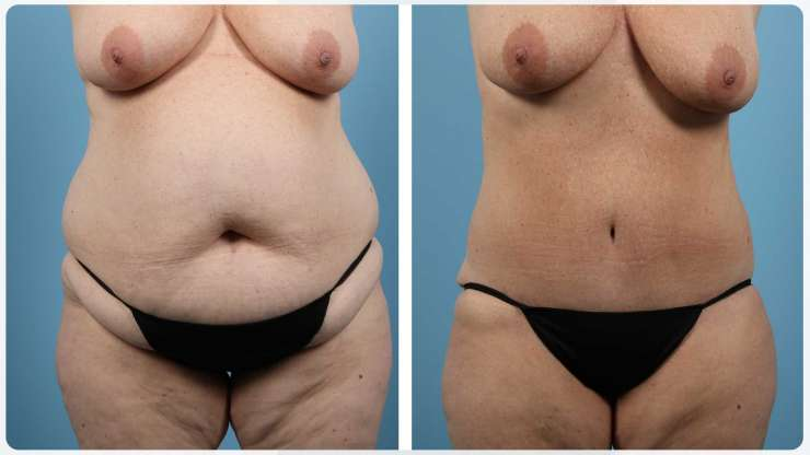 Age 45 Female Liposuction Case 1020 Before/After