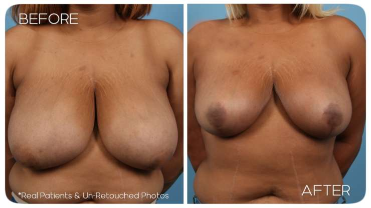 Age 28 Female Breast Reduction Case 112 Before/After