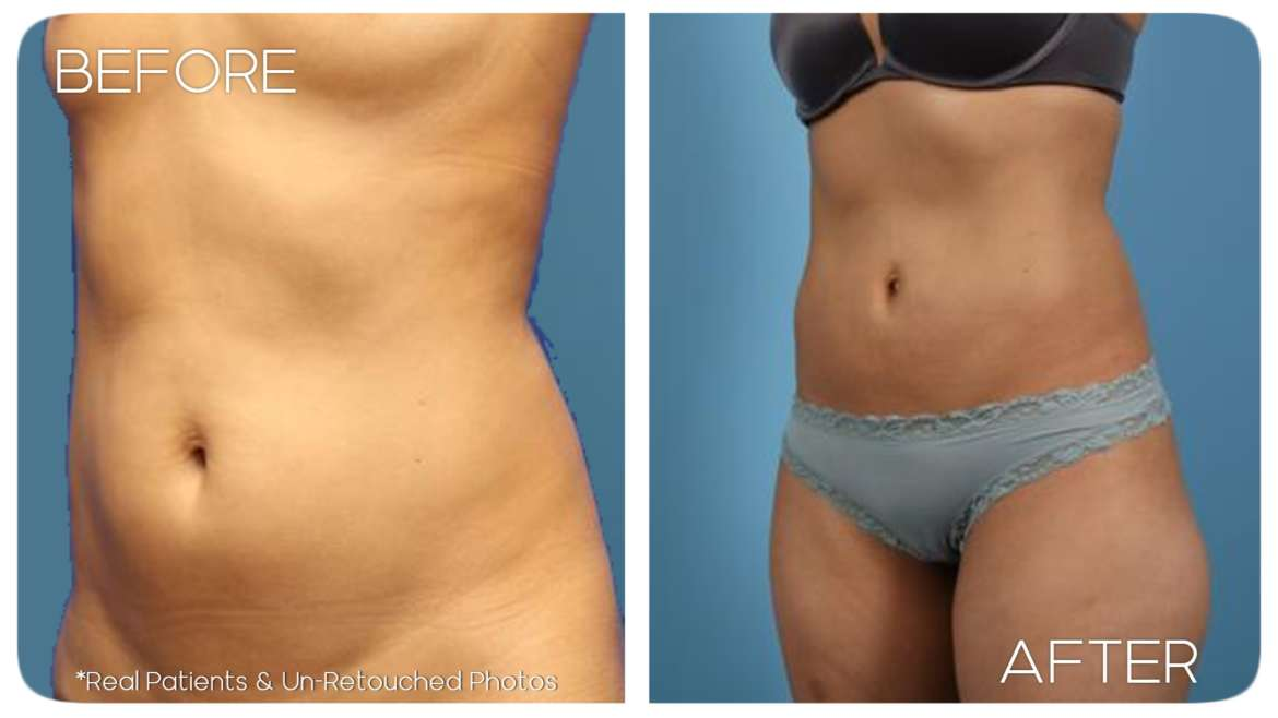 Age 31 Female Liposuction Case 1 Before/After