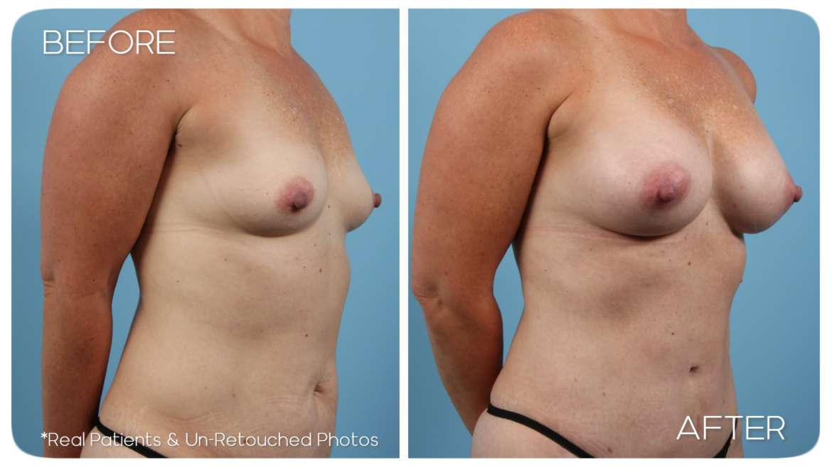Age 46 Female Mommy Makeover Abdominoplasty Breast Aug Case 1256 Before/After
