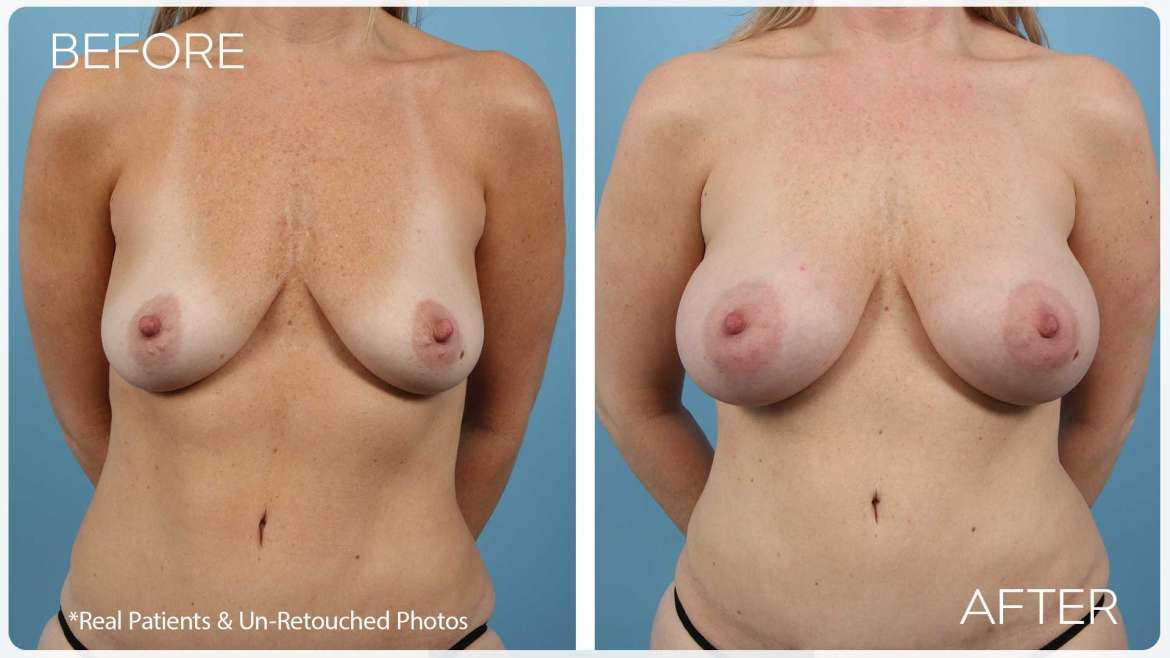 Age 47 Female Breast Augmentation Case 1832 Before/After
