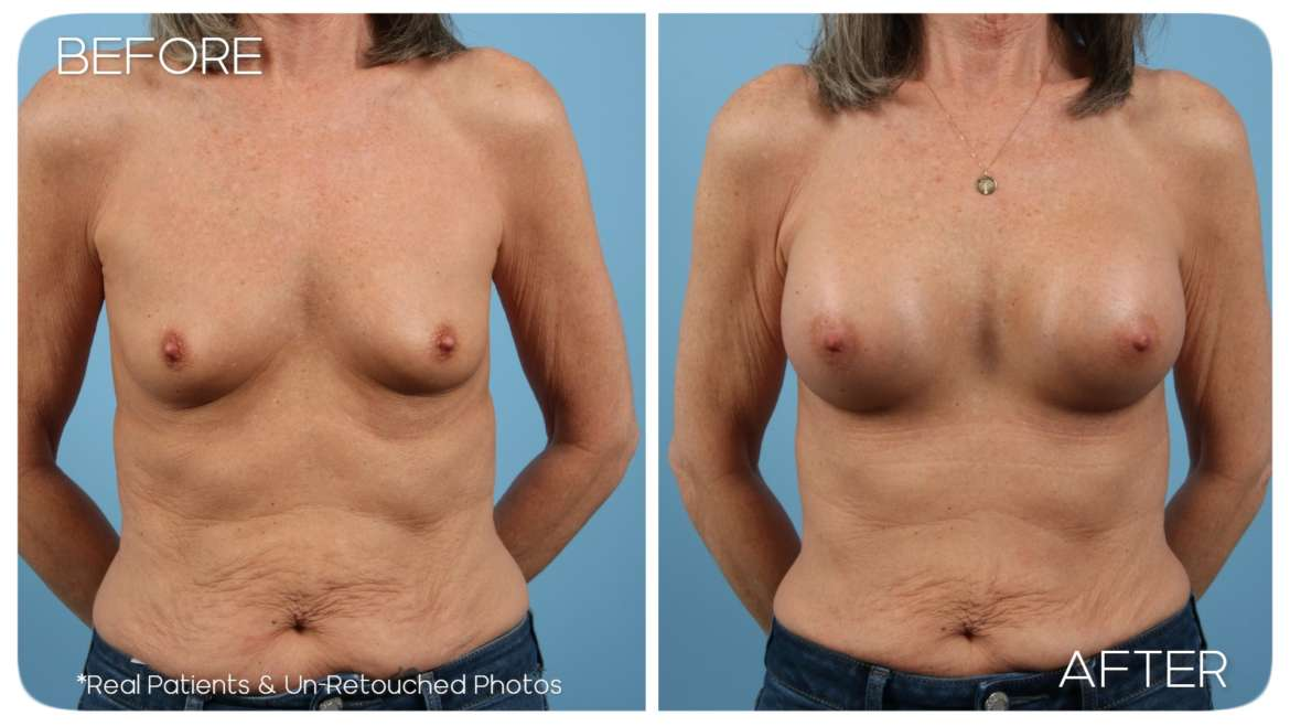 Age 59 Female Breast Augmentation Case 1965 Before/After