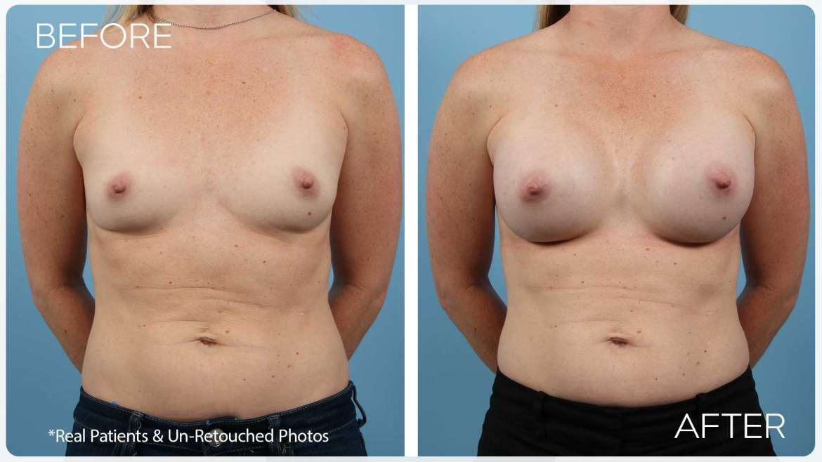 Age 37 Female Breast Augmentation Case 2069 Before/After