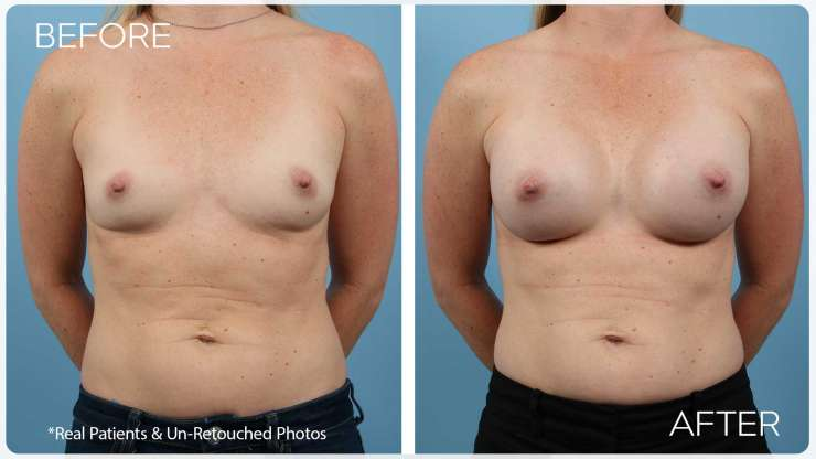 Age 28 Female Breast Augmentation Case 2453 Before/After