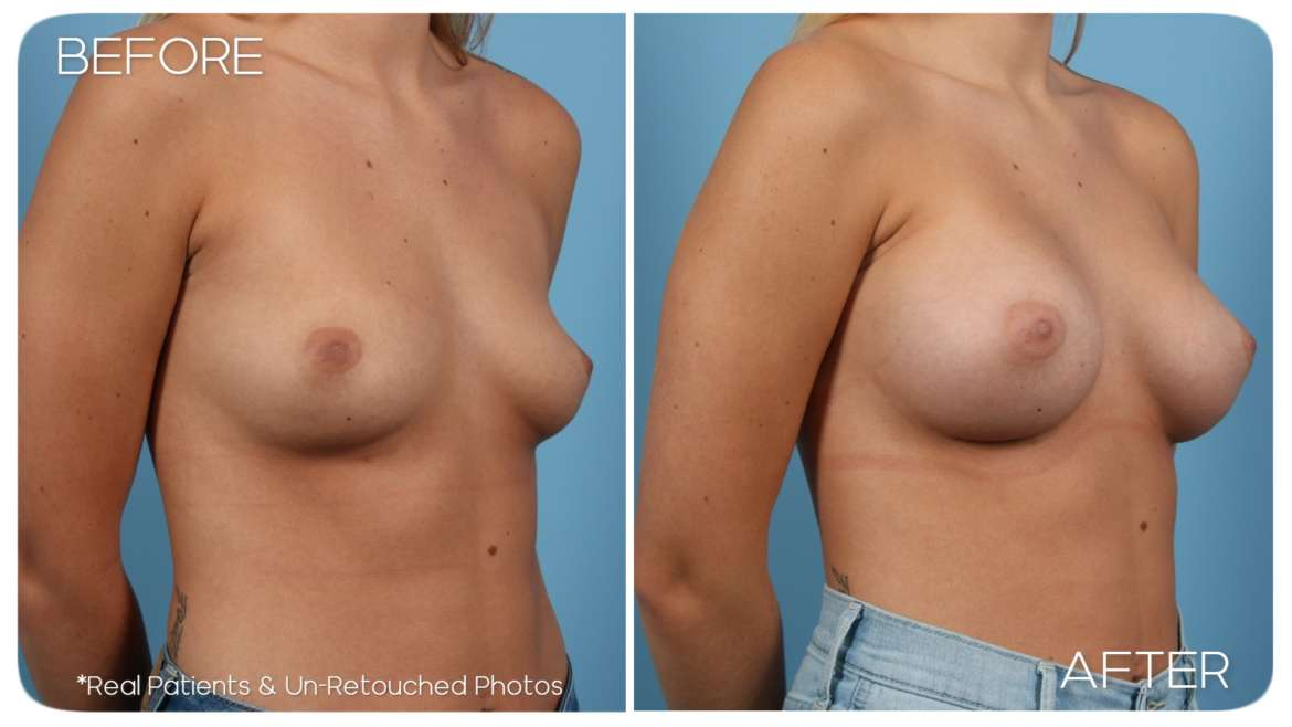 Age 22 Female Breast Augmentation Case 214 Before/After