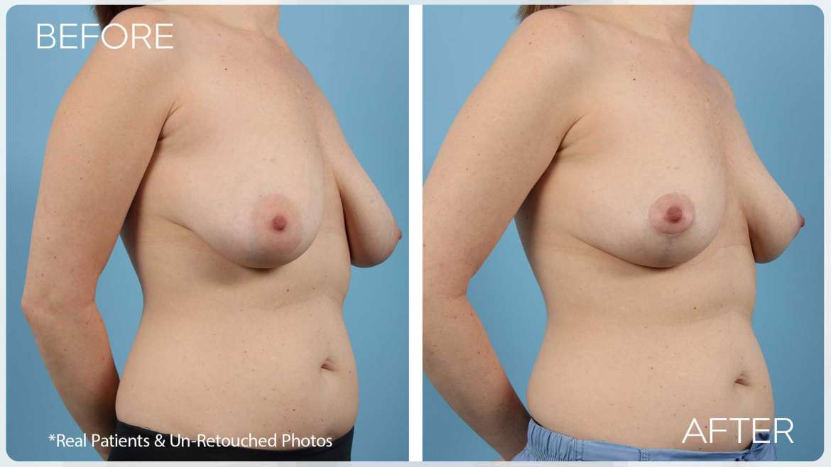 Age 37 Female Breast Lift Case 2155 Before/After