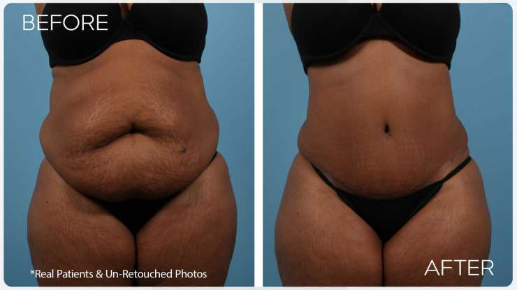 Age 46 Female Liposuction/Tummy Tuck Case 2419 Before/After