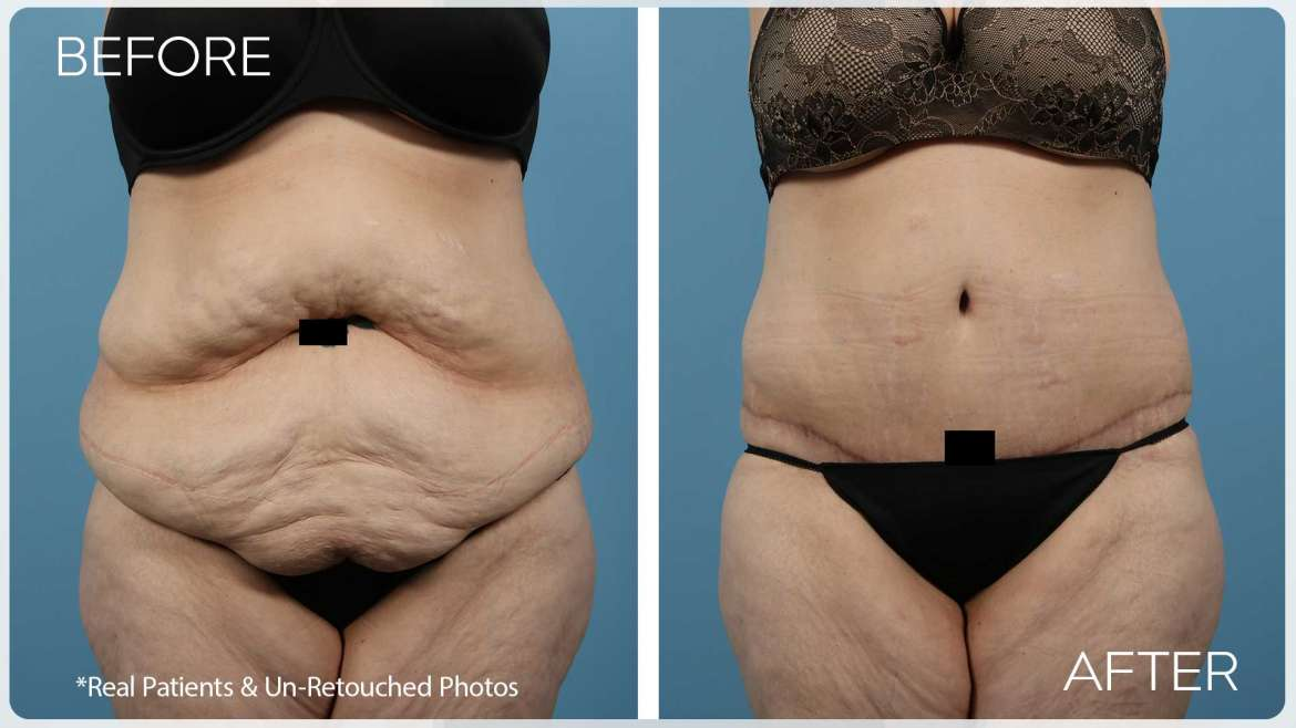 Age 38 Female Liposuction / Body Lift Case 2671 Before/After