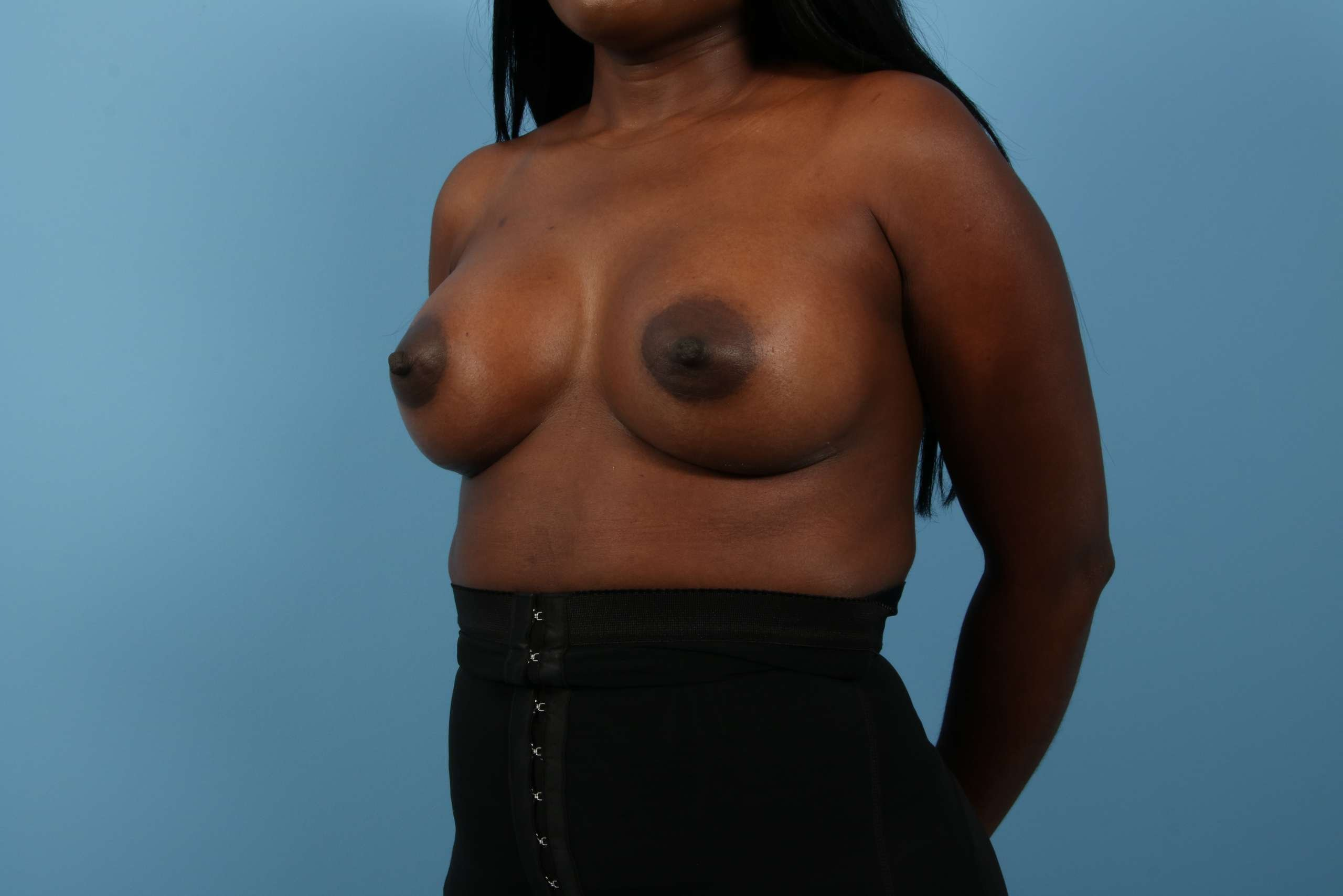 case-2943-breast-oblique-after