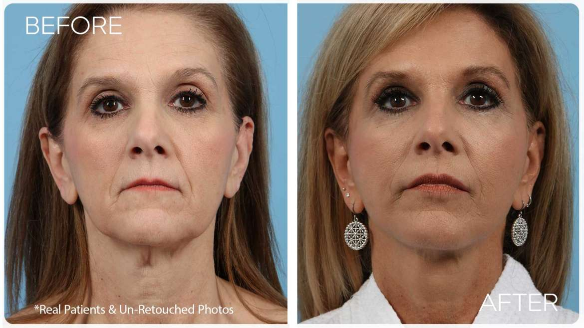 Age 53 Female Face Replace Case 5 Before/After