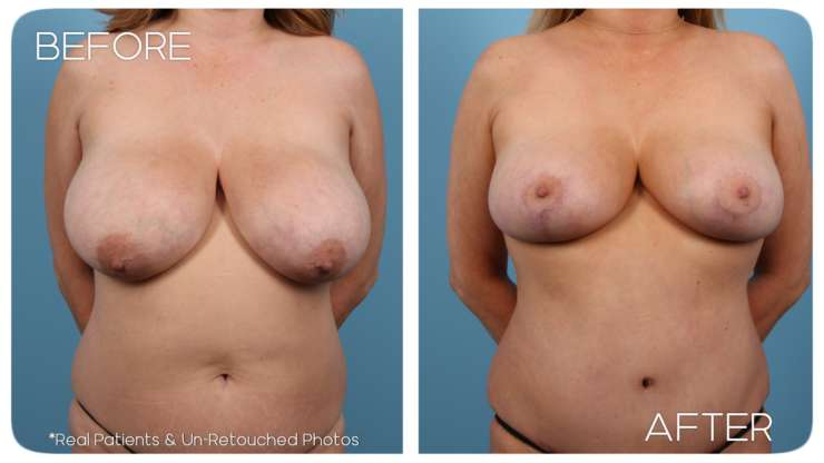 Age 41 Female Breast Reduction, Abdominoplasty Case 508 Before/After