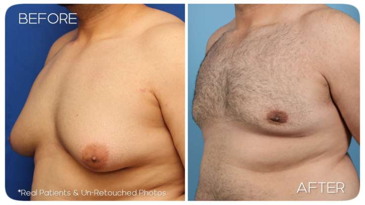 Age 27 Male Gynecomastia Case 62 Before/After