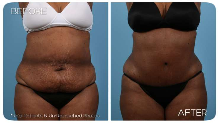 Age 59 Female Abdominoplasty, Liposuction Case 627 Before/After