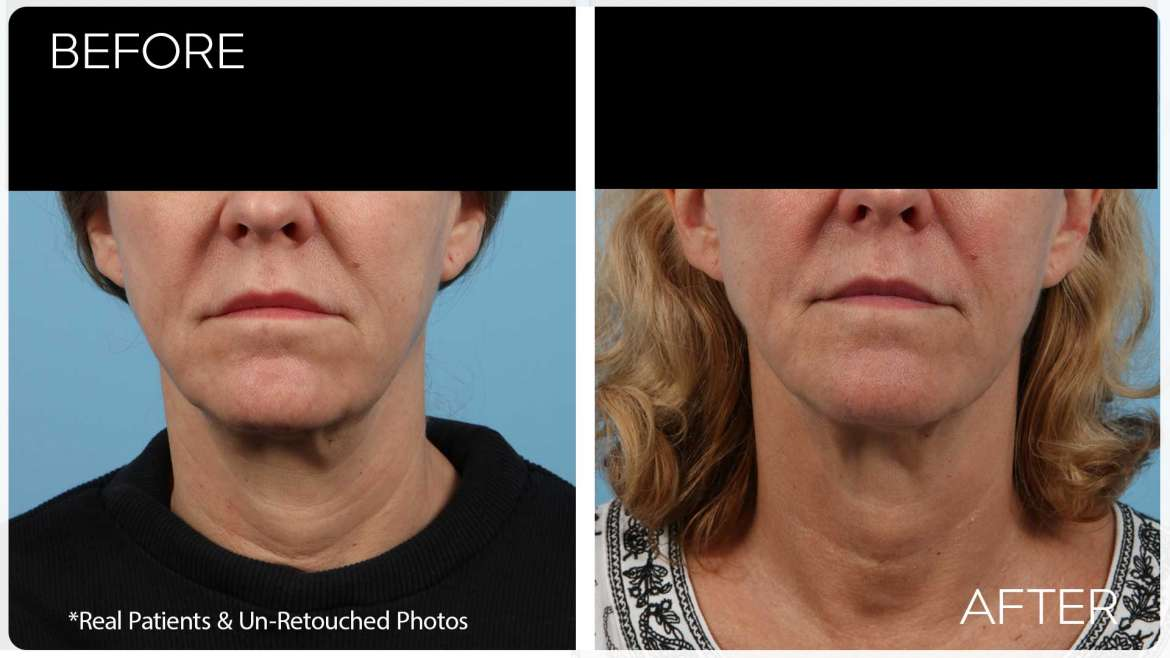 Age 55 Female Profound RF Case 71 Before/After
