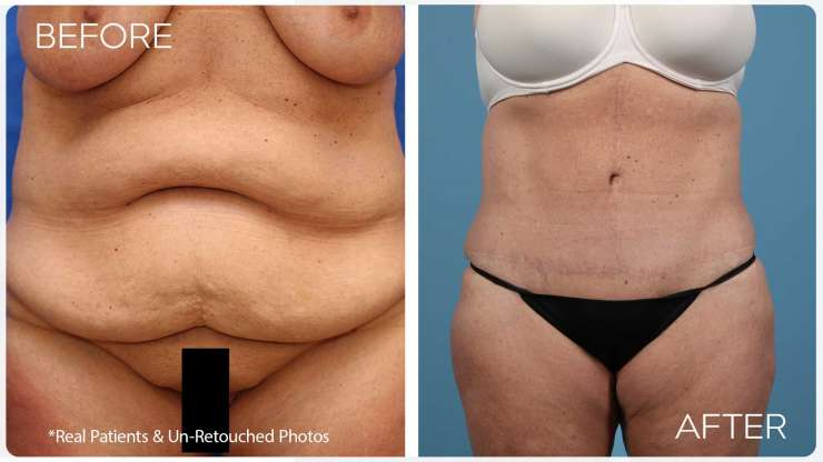 Age 42 Female Massive Weight Loss Case 8 Before/After